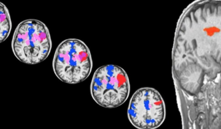 Brain scan is shown with different areas highlighted.
