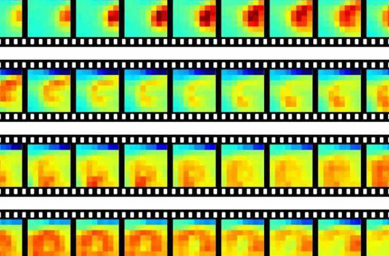These images show the recordings of the neuronal activity.