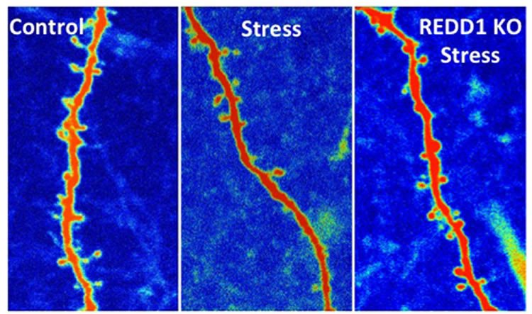 New Finding Suggests a Way to Block Stress Damage