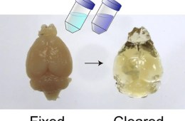 The image shows an mouse brain and a clear, jelly looking mouse brain.