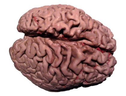The image shows a plastinated brain of an Alzheimer's patient from the Body World's exhibit.