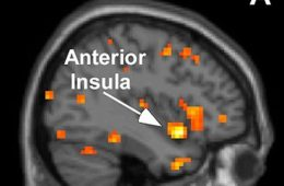 The image shows an fMRI scan wityh the Anterior Insula highlighted and labeled.