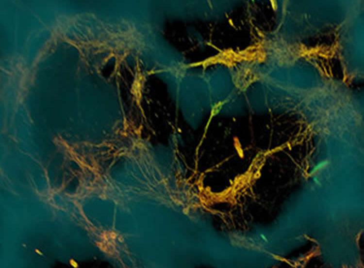 The image shows a confocal microscope image of neurons.