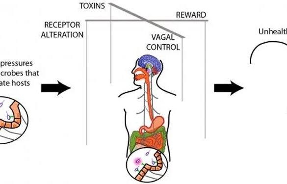 The image is a diagram which shows how gut bacteria can influence unhealthy eating.
