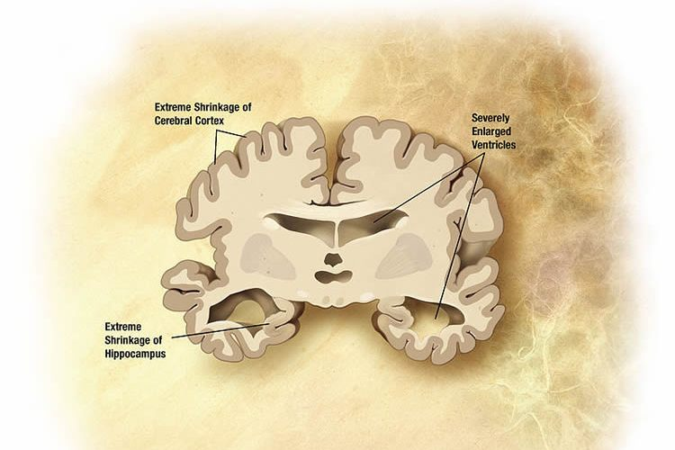 This image shows a drawing of a brain slice shrunken due to Alzheimer's disease.