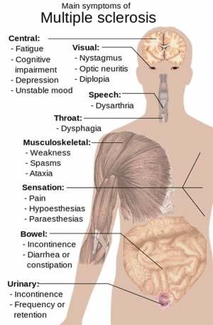 The image is a diagram of the human body which outlines areas affected by different aspects of MS.
