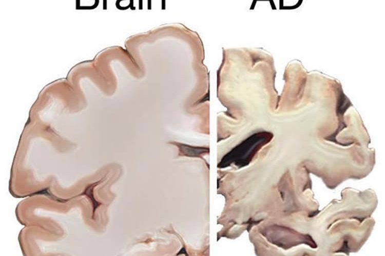 The image shows a health brain slice and a brain slice taken from a person with Alzheimer's disease.