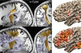 The image shows mri scans mapping the white matter in a human brain.