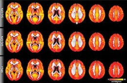This image shows MRI brain perfusion scans.
