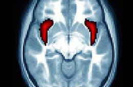 This image shows the location of the anterior insular in a brain scan.