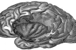 The image is a diagram from Gray's Anatomy which shows a cut away in the brain revealing the insular cortex.