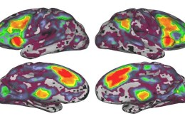 The image shows fMRI brain scans taken as part of the study.