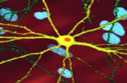 The image shows a single striatal neuron (yellow) transfected with nuclear inclusion (orange) mHtt, other neurons in background (blue).