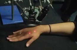 This image shows a person's hand being stimulated by a laser.