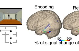 The image shows a path map and two brain images.