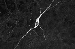 This is a hypothalamic neuron