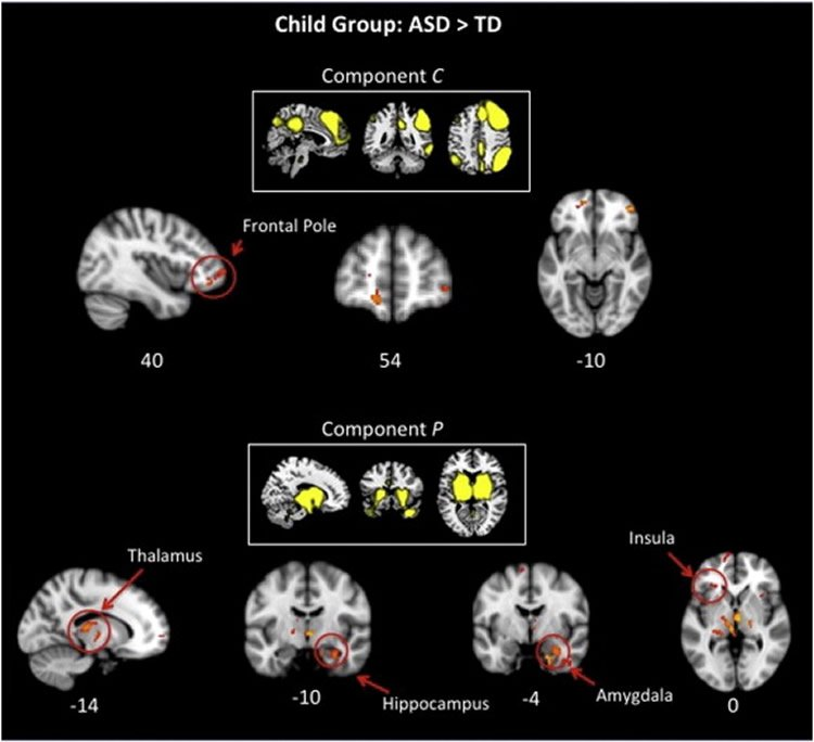 Discovering Age Specific Brain Changes >> Discovering Age Specific Brain Changes In Autism Neuroscience News