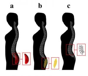 The image shows the gluteal development.