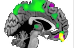 The VPC is outlined in yellow in this brain image.