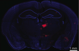 A coronal section of a mouse brain.