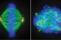 This image showsn normal cell dividing (left) and stressed cancer cell dividing (right). PLK1 inhibitors stress cancer cells, making them easier to kill.