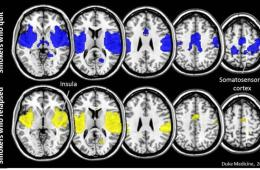 This shows brain differences in those who quit smoking and those who relapse.