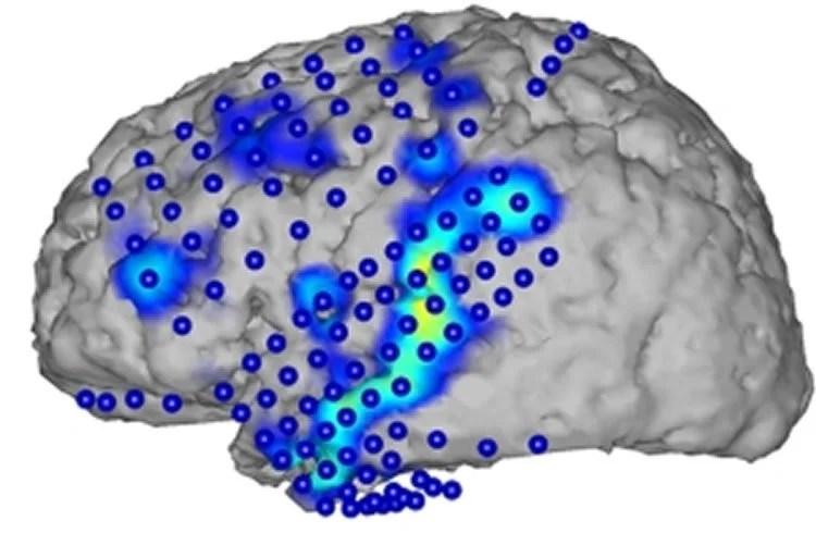 Reconstructing Spoken Sentences From Brain Activity Patterns