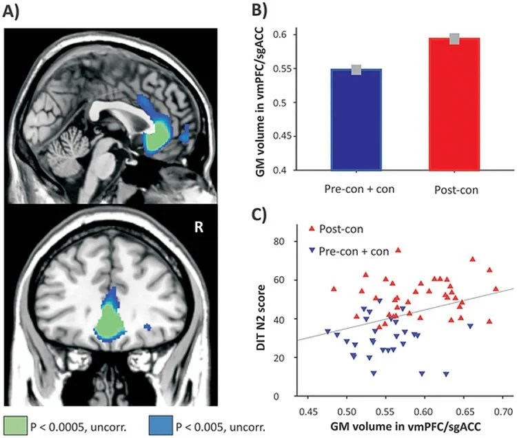 Increased Grey Matter in Those With Higher Levels of Moral Reasoning
