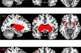 This image shows MRI brain scans of the limbic system.
