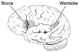 This image shows the location of the Wernicke's area in the brain.