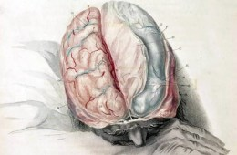 This image shows a man sleeping with his brain exposed.