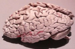 This image is a photo of a plastinated Alzheimer's brain.