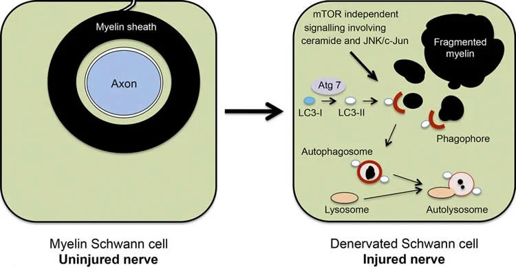 This image shows the proposed role of myelinophagy in a Schwann cell after nerve injury and axon degeneration.