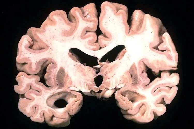 This image shows a brain slice of a person with alzheimer's.