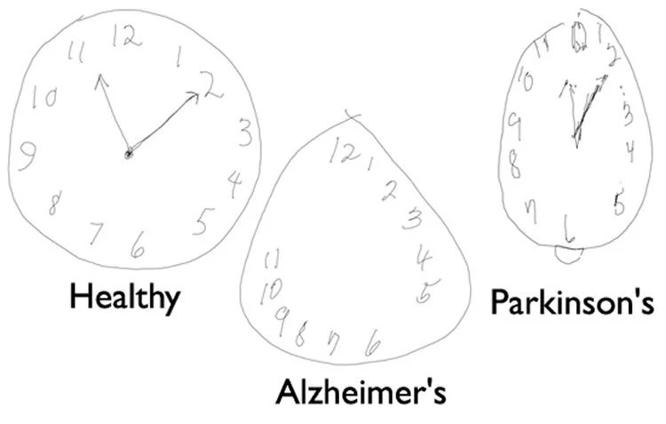 Detecting Alzheimer's Disease by Drawing a Clock Face with a Digital Pen