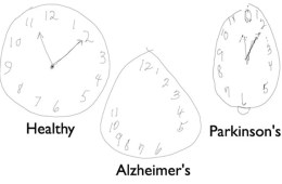 This shows a clock face drawn by a person with Alzheimer's, a person with Parkinson's and a healthy person.