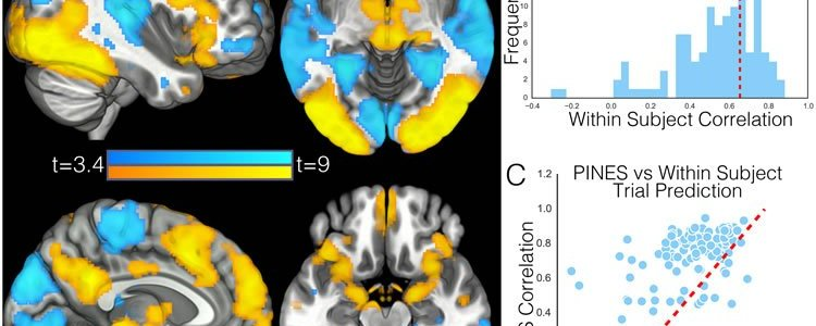 This image shows four brain scans. The caption best describes the image.