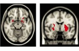 This image shows the regions of the brain where greater activation was noted.
