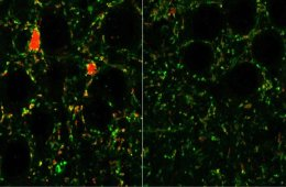 This shows a mouse neurons.