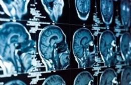 This shows MRI brain scans.