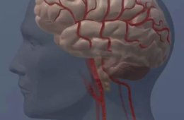 This shows a blood flow block in the brain.
