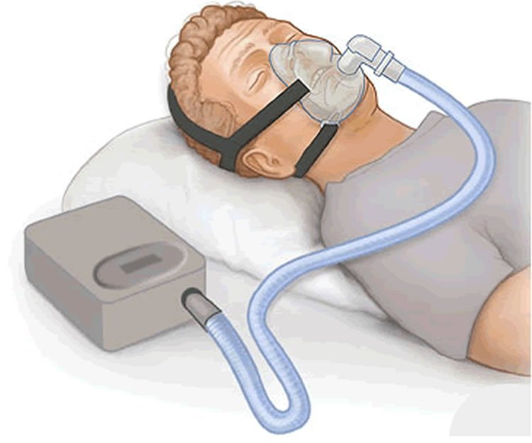 CPAP Reduces Depression in Adults with Sleep Apnea - Neuroscience News
