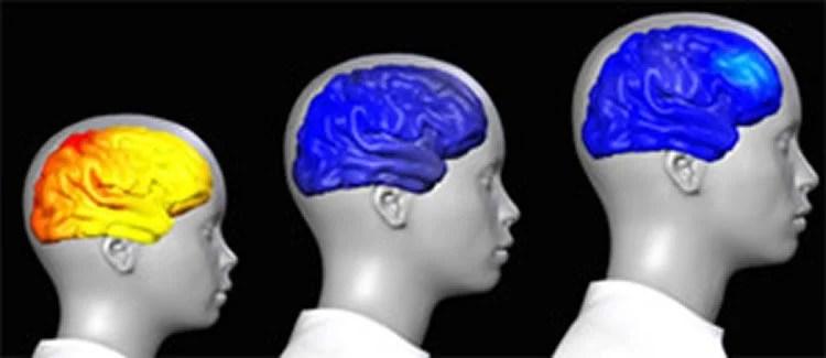 Uncovering the Secrets of the Adolescent Brain