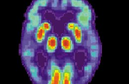This is a PET scan of a person's brain who has Alzheimer's.