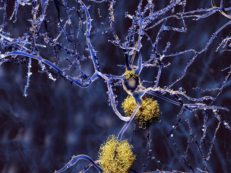 Image shows a neuron covered in amyloid plaques.