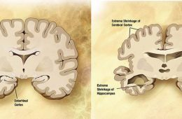 Illustration of a healthy brain slice and a brain slice from a person with Alzheiemr's.