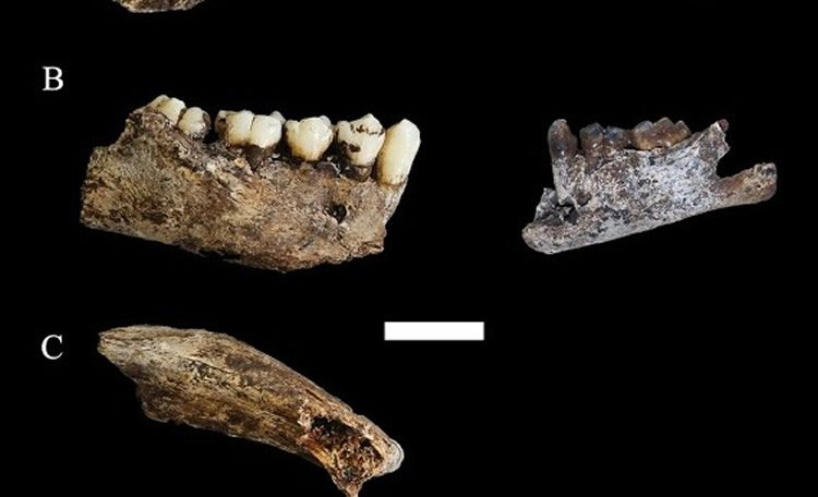Image of teeth and bone fragments.