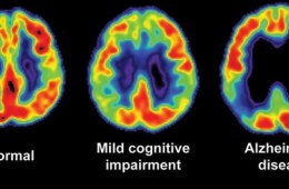 Image shows three brain scans. One is of a normal brain, one from a person with MCI and one from a person with Alzheimer's disease.