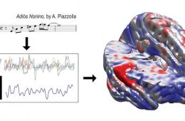 Image shows brain scan and musical notes.