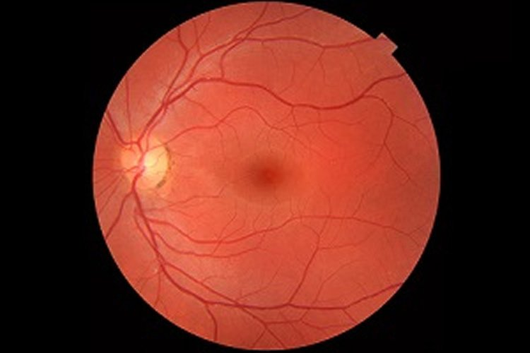 Image shows retinal cells.